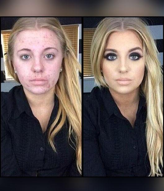 Que vitamina para la piel del acné